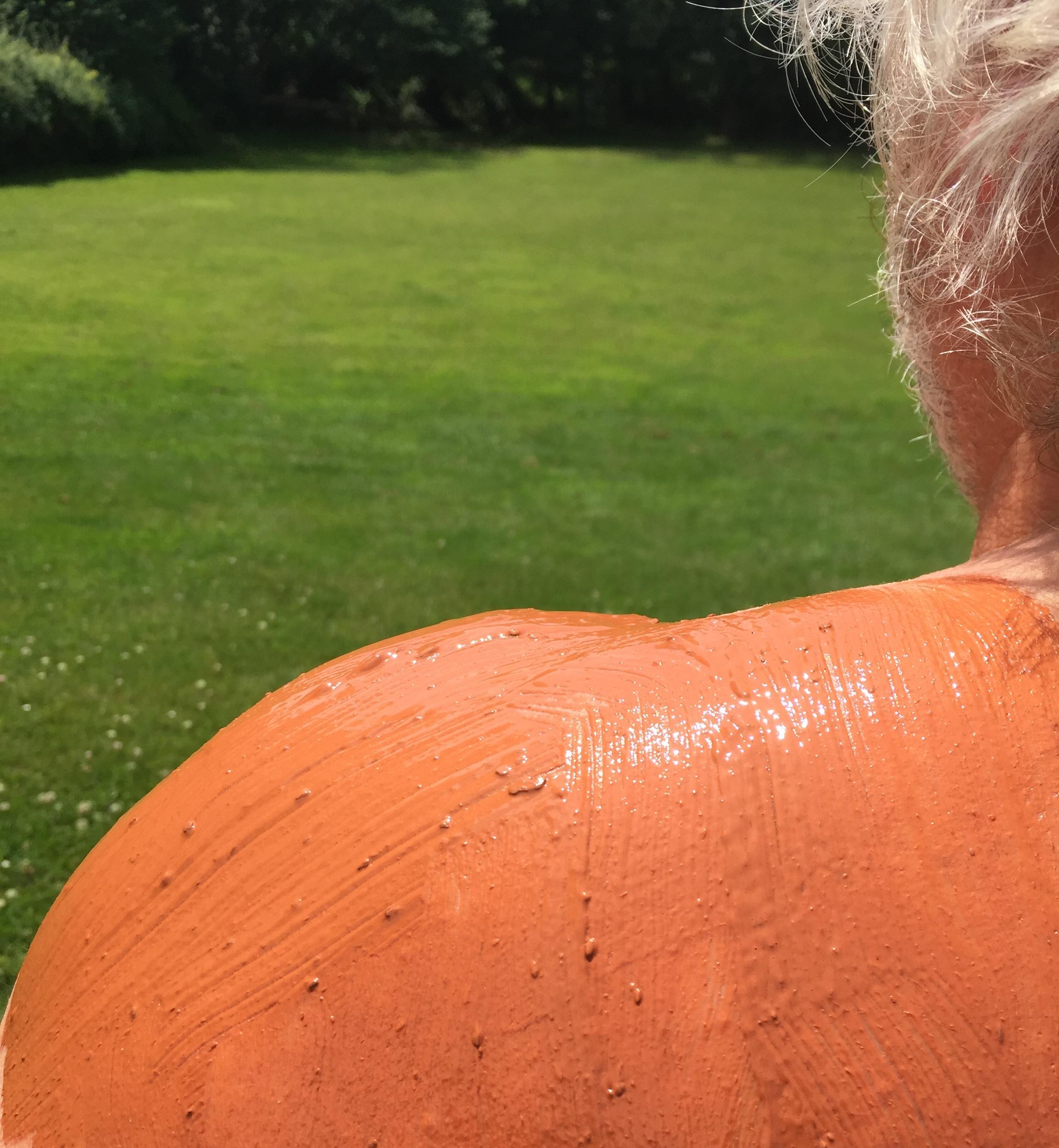 Soigner un coup de soleil sur la peau - Comment soigner coup de soleil ...