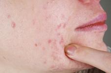 acné visage adulte