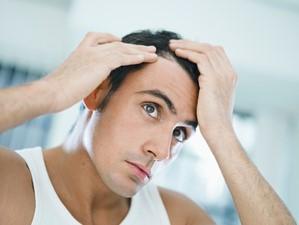 Mes cheveux tombent : Est-ce normal ? Que faire ?