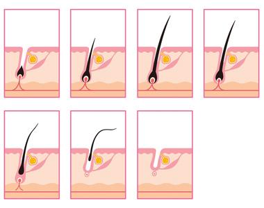 schéma des différents stades de la croissance des cheveux