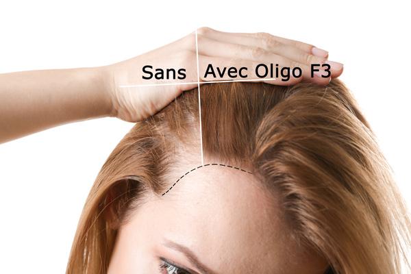 avant et après la repousse des cheveux