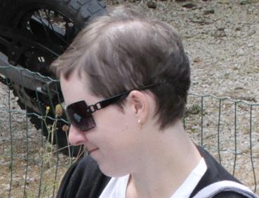 Aurélie Lardinois avant le traitement Géomer
