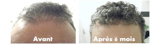 photos avant après traitement anti chute géomer