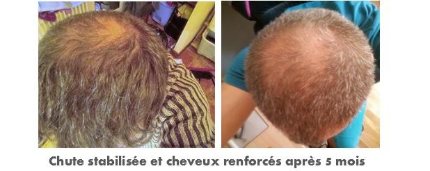 Photo avant après un traitement contre la chut de cheveux géomer