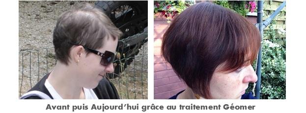 photo avant et après traitement anti chute et repousse du laboratoire géomer