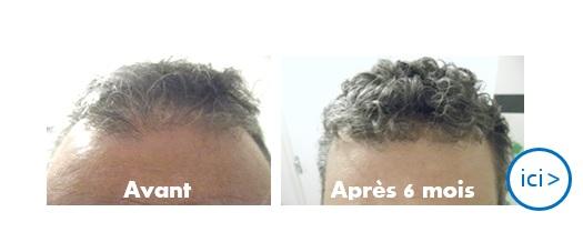 photo avant après traitement contre la chute de cheveux géomer
