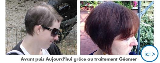 Témoignage client Géomer sur la repousse des cheveux après la grossesse