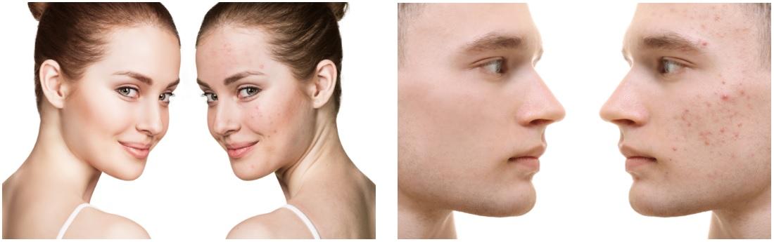 soin contre l'acné du laboratoire géomer