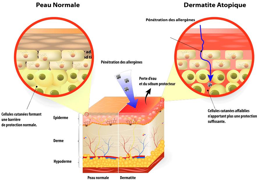 schéma cutané de la dermatite atopique